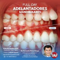 Adelantadores mandibulares