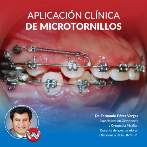 Fullday Aplicación Clínica de Microtornillos