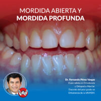 Fullday Mordida Abierta Mordida Profunda