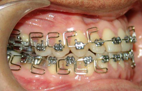 Curso Online de Ortodoncia Avanzada